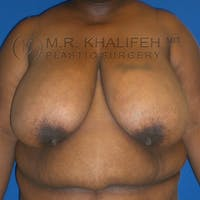 Breast Reduction Gallery - Patient 3761970 - Image 1
