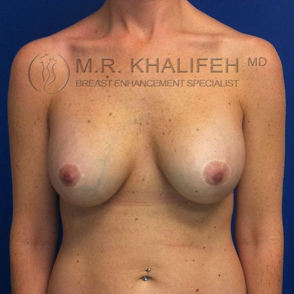 Breast Lift Gallery - Patient 3761967 - Image 2