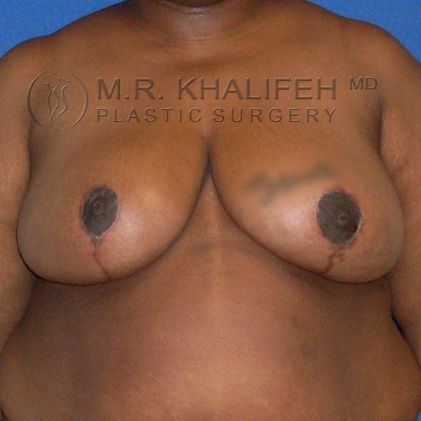 Breast Reduction Gallery - Patient 3761970 - Image 2