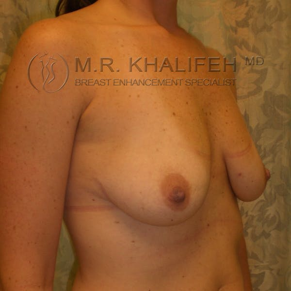Breast Lift Gallery - Patient 3761967 - Image 3