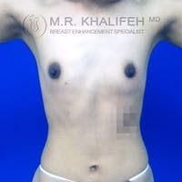 Breast Augmentation Gallery - Patient 3761971 - Image 1