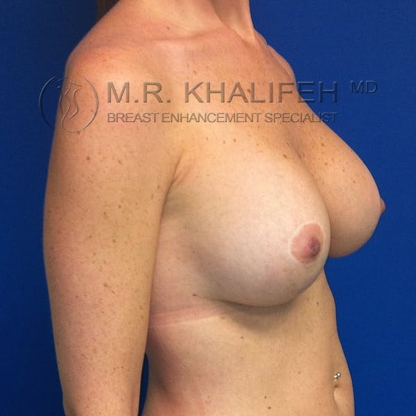 Breast Lift Gallery - Patient 3761967 - Image 4