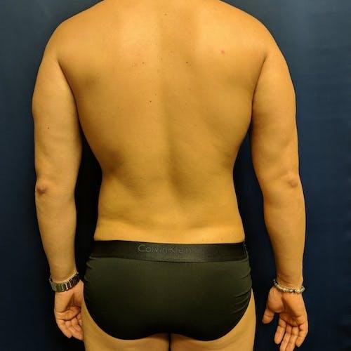 Midback-Bra Line Lipo Gallery - Patient 3761972 - Image 2