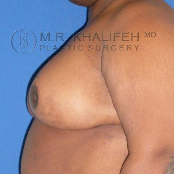 Breast Reduction Gallery - Patient 3761970 - Image 4