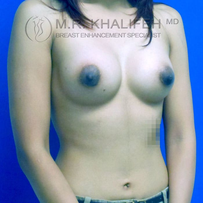 Breast Augmentation Gallery - Patient 3761971 - Image 4