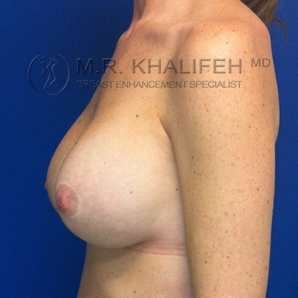 Breast Lift Gallery - Patient 3761967 - Image 6