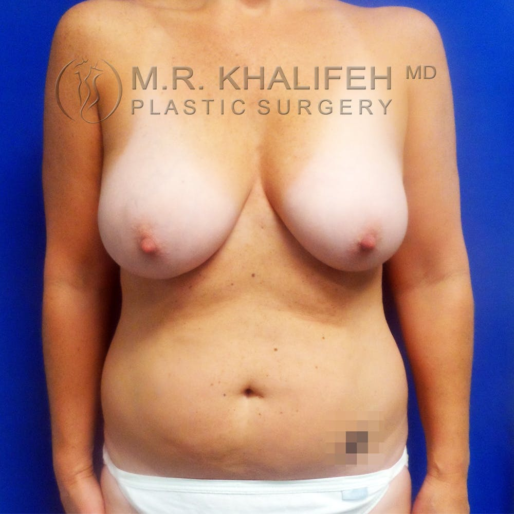 Breast Lift Gallery - Patient 3762003 - Image 1
