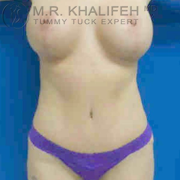 Tummy Tuck Gallery - Patient 3761996 - Image 2