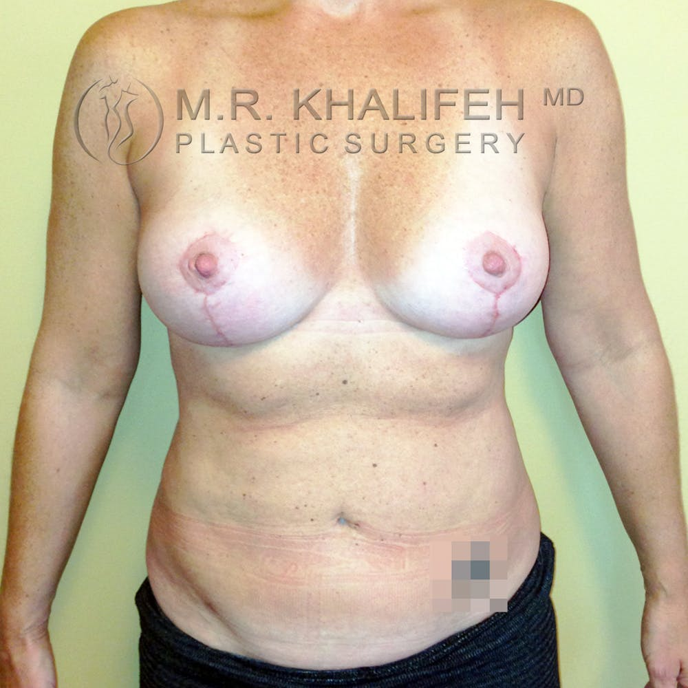 Breast Lift Gallery - Patient 3762003 - Image 2