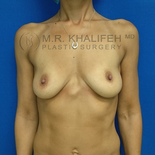 Breast Augmentation Gallery - Patient 3761997 - Image 1