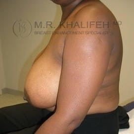 Breast Reduction Gallery - Patient 3761974 - Image 3