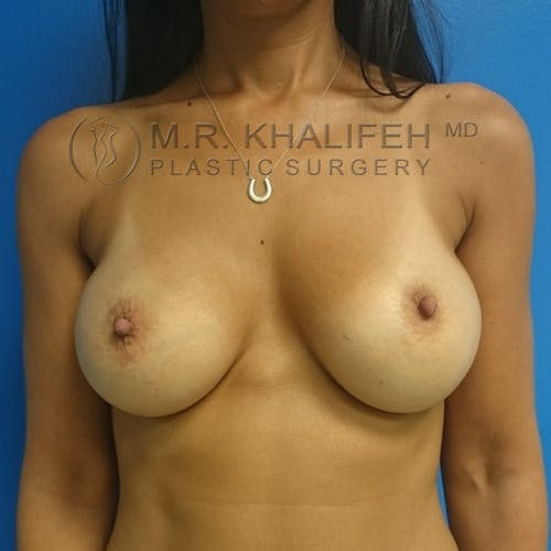 Breast Augmentation Gallery - Patient 3761997 - Image 2