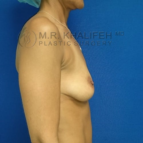 Breast Augmentation Gallery - Patient 3761997 - Image 3