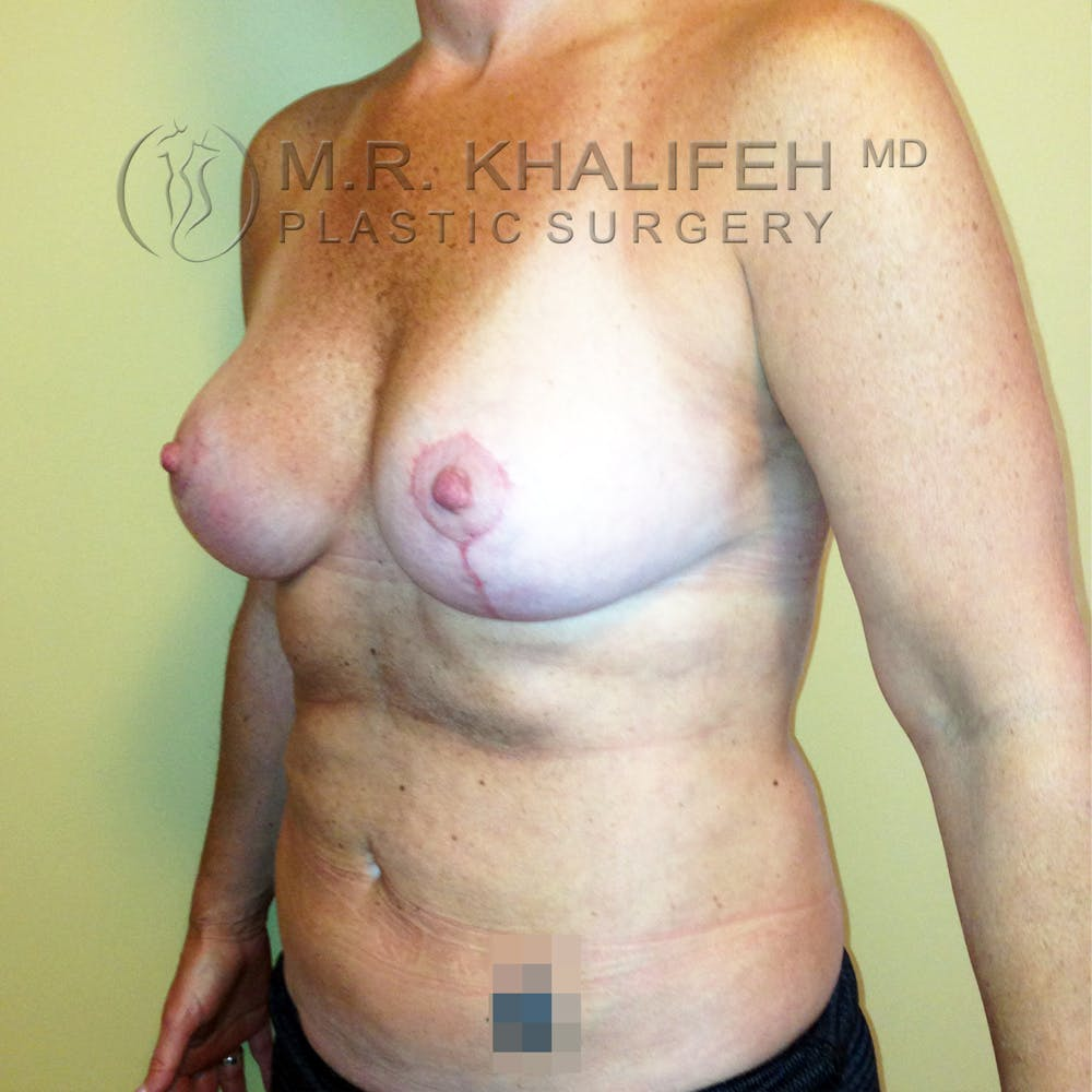 Breast Lift Gallery - Patient 3762003 - Image 4