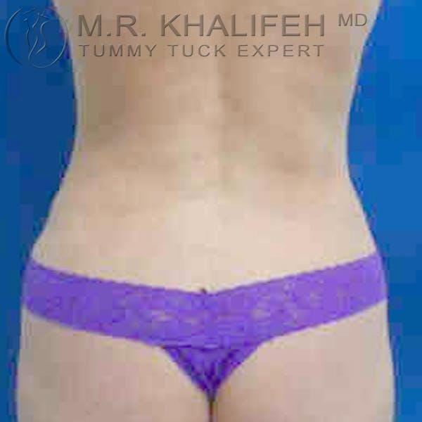 Tummy Tuck Gallery - Patient 3761996 - Image 6