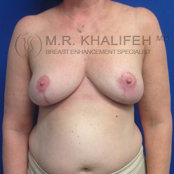 Breast Reduction Gallery - Patient 3762002 - Image 2