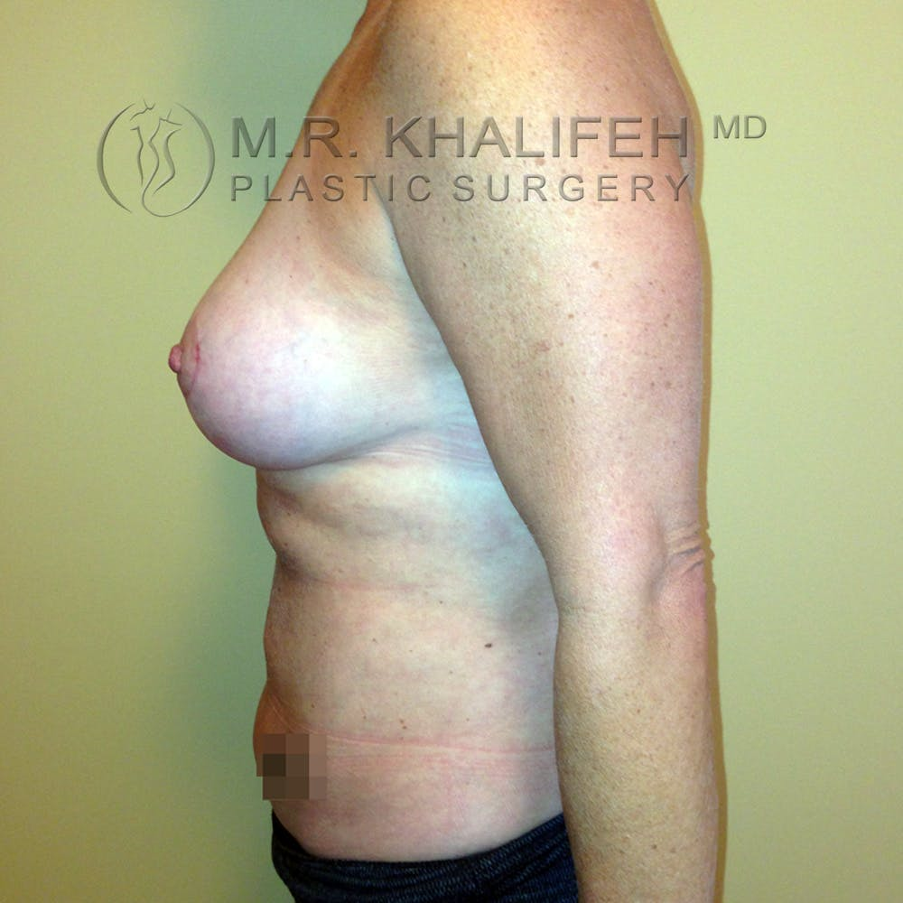 Breast Lift Gallery - Patient 3762003 - Image 6
