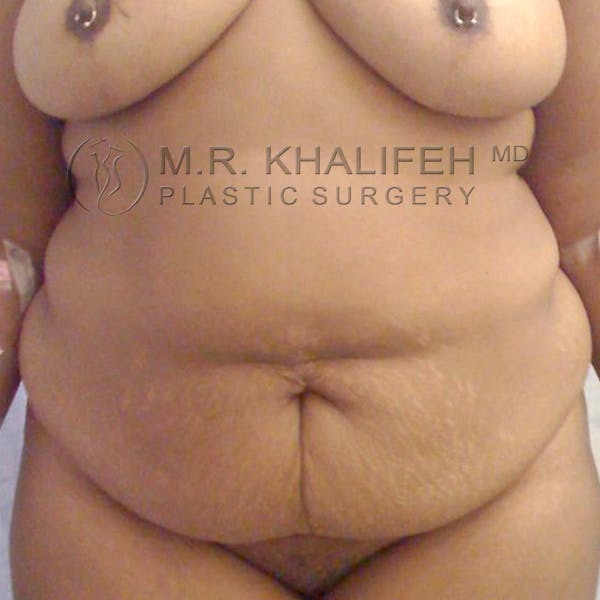 Tummy Tuck Gallery - Patient 3762008 - Image 1