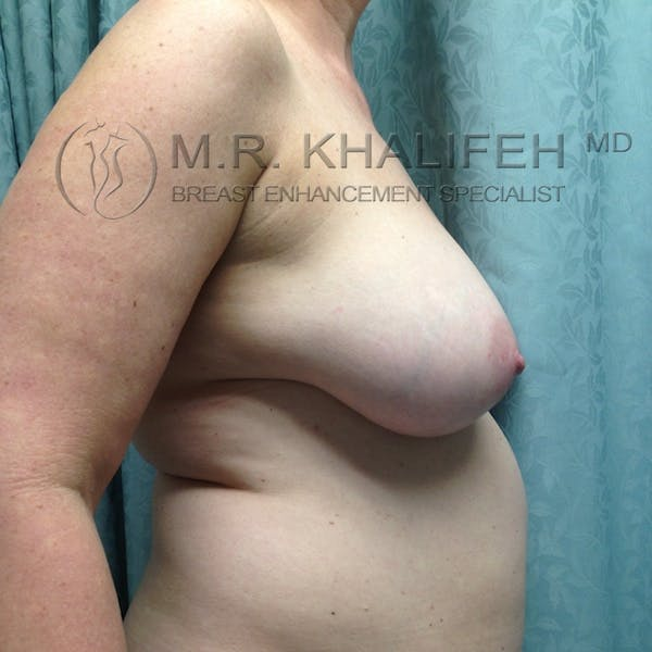 Breast Reduction Gallery - Patient 3762002 - Image 5