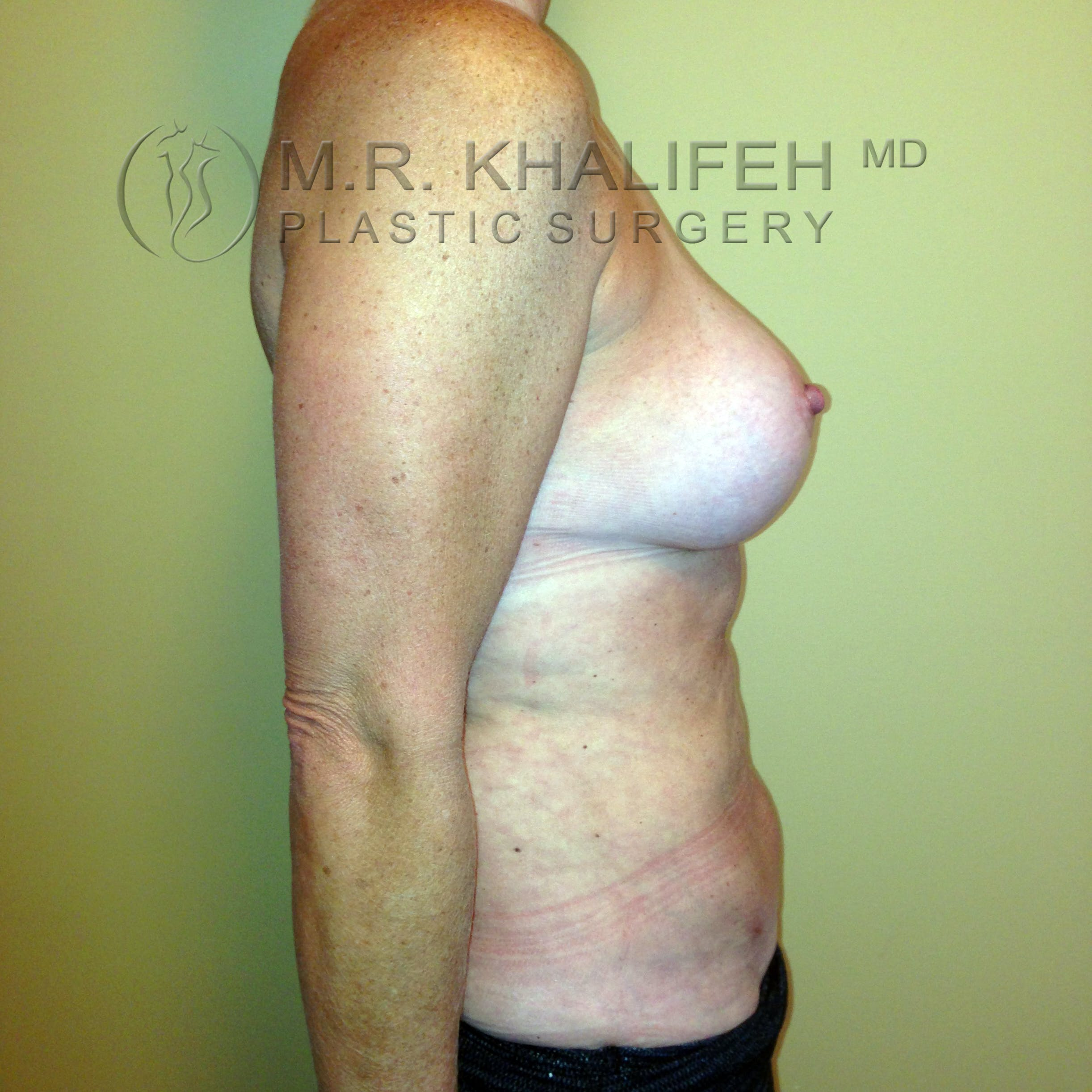 Breast Lift Gallery - Patient 3762003 - Image 8