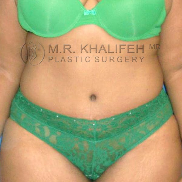 Tummy Tuck Gallery - Patient 3762008 - Image 2