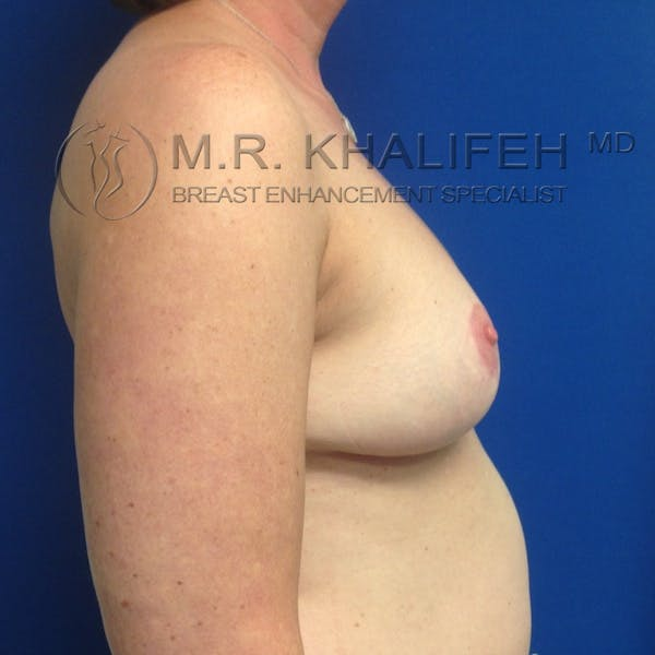 Breast Reduction Gallery - Patient 3762002 - Image 6