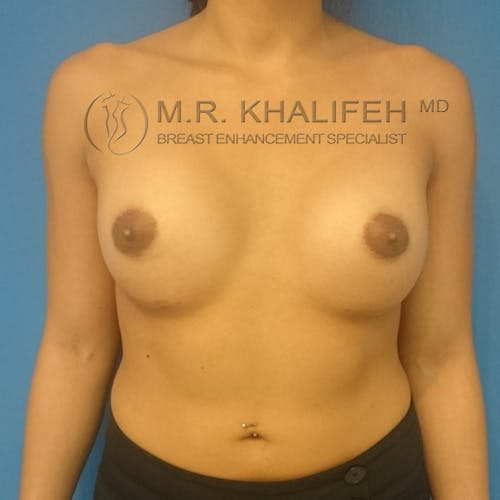 Breast Augmentation Gallery - Patient 3762010 - Image 2