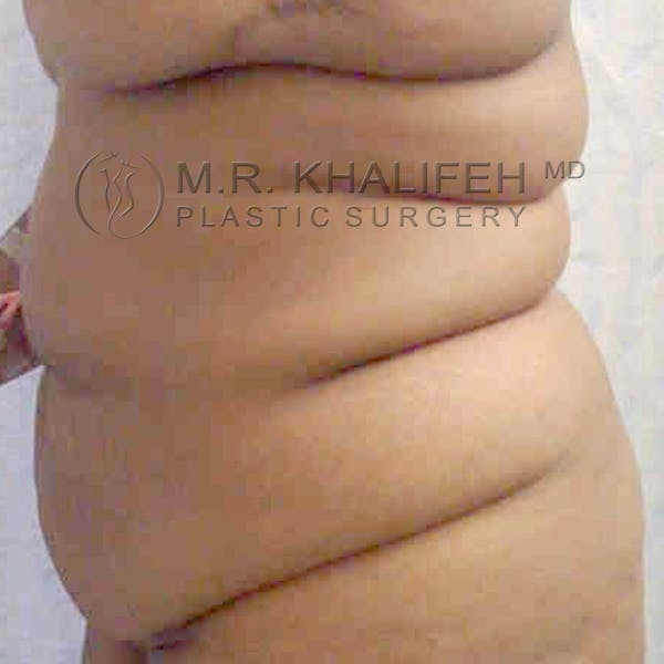Tummy Tuck Gallery - Patient 3762008 - Image 3