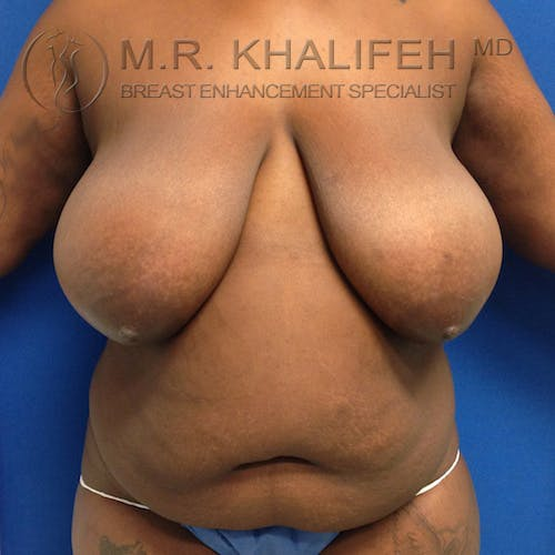 Breast Reduction Gallery - Patient 3762012 - Image 1