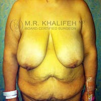 Breast Lift Gallery - Patient 3762011 - Image 1
