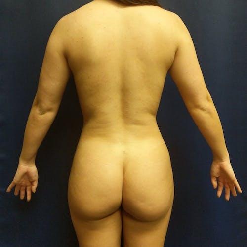 Midback-Bra Line Lipo Gallery - Patient 3762014 - Image 2