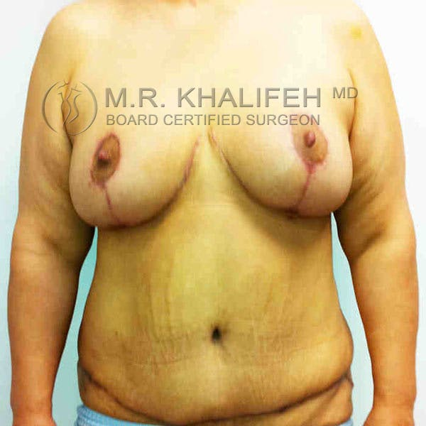 Breast Lift Gallery - Patient 3762011 - Image 2