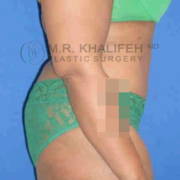 Tummy Tuck Gallery - Patient 3762008 - Image 6