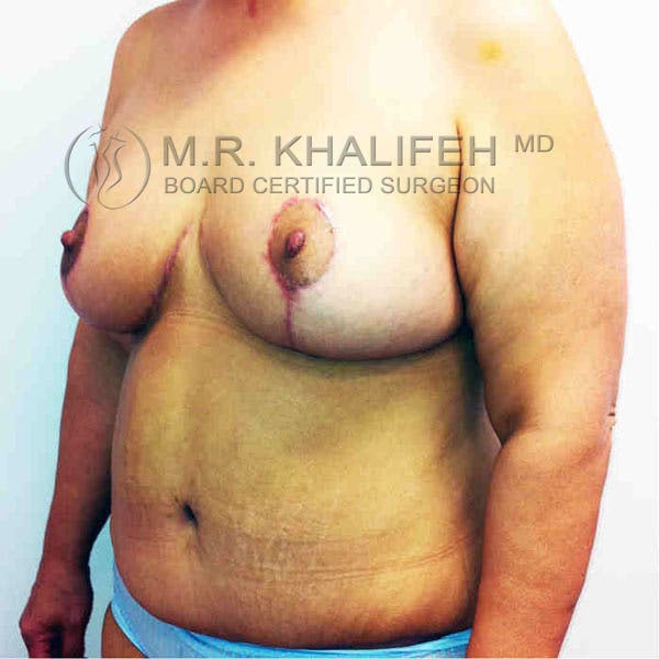 Breast Lift Gallery - Patient 3762011 - Image 4