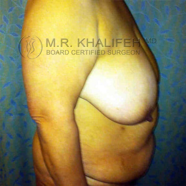 Breast Lift Gallery - Patient 3762011 - Image 5