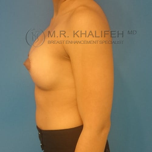 Breast Augmentation Gallery - Patient 3762010 - Image 10