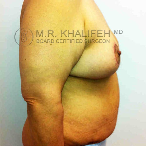Breast Lift Gallery - Patient 3762011 - Image 6