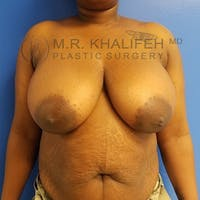 Breast Reduction Gallery - Patient 3762019 - Image 1