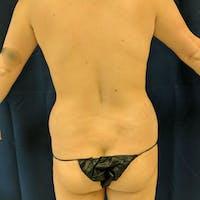 Midback-Bra Line Lipo Gallery - Patient 3762020 - Image 1