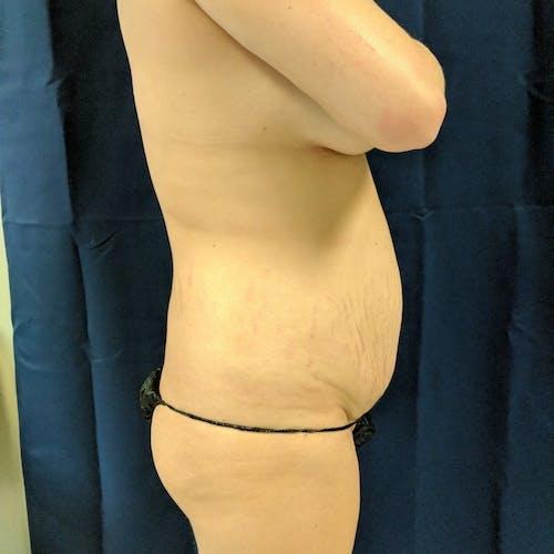 Midback-Bra Line Lipo Gallery - Patient 3762020 - Image 3