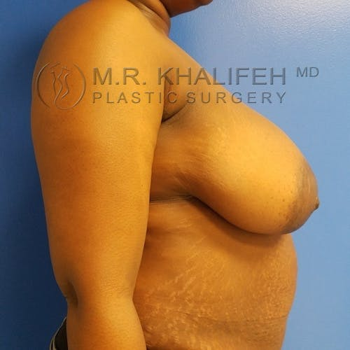 Breast Reduction Gallery - Patient 3762019 - Image 5