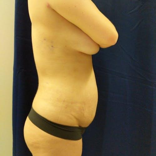Midback-Bra Line Lipo Gallery - Patient 3762020 - Image 4