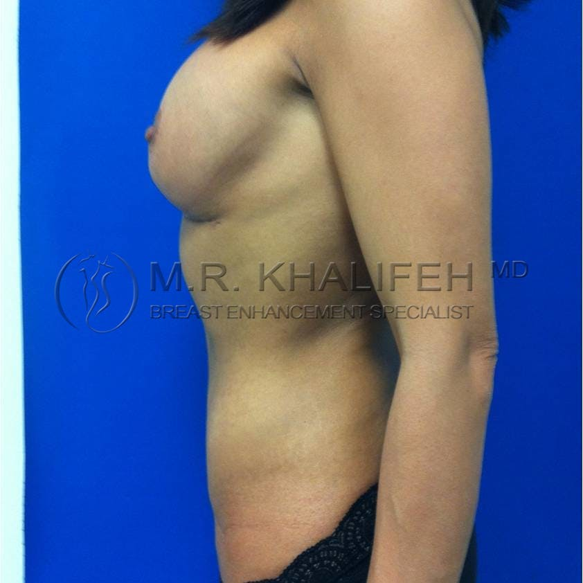 Breast Lift Gallery - Patient 3762018 - Image 6