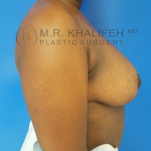 Breast Reduction Gallery - Patient 3762019 - Image 6