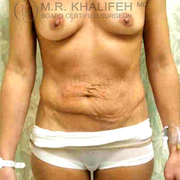 Tummy Tuck Gallery - Patient 3762022 - Image 1