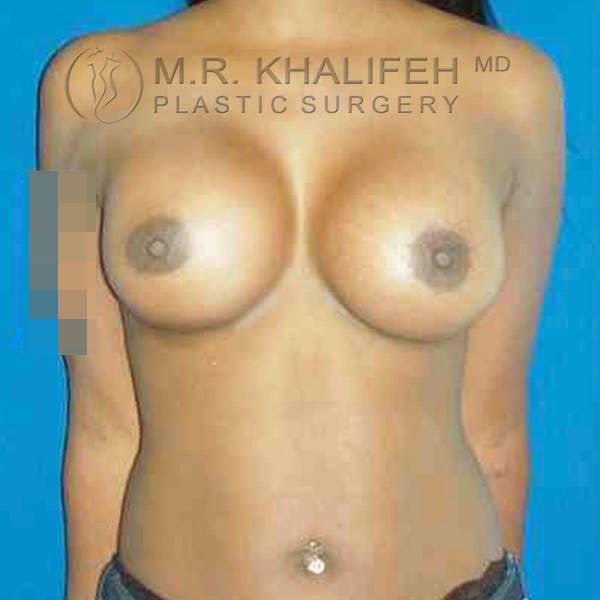 Breast Augmentation Gallery - Patient 3762021 - Image 2