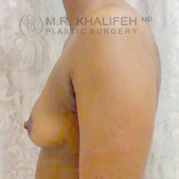 Breast Augmentation Gallery - Patient 3762021 - Image 3