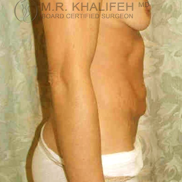 Tummy Tuck Gallery - Patient 3762022 - Image 3