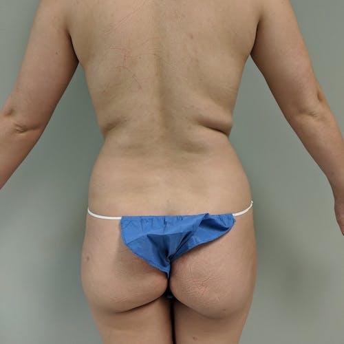 Midback-Bra Line Lipo Gallery - Patient 3762024 - Image 1