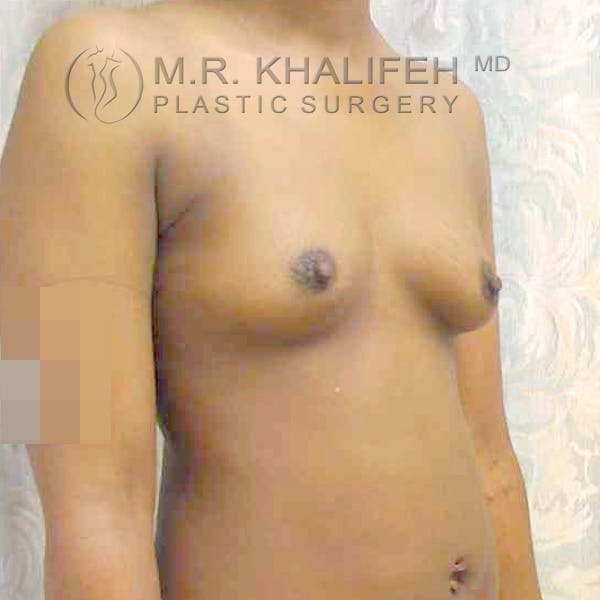 Breast Augmentation Gallery - Patient 3762021 - Image 5